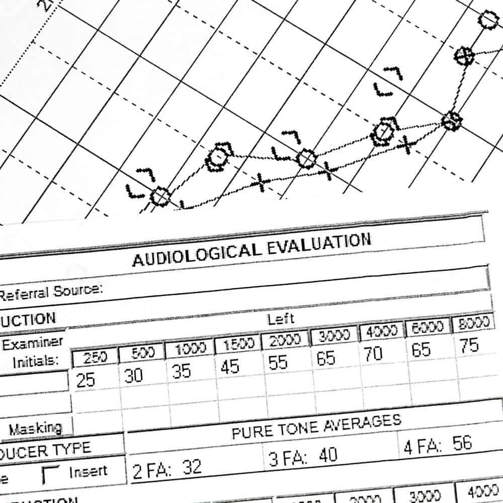 Hearing chart   Hearing test in Lubbock